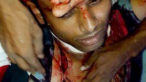 শ্রীমঙ্গলে চা'পাতির কোপে  অটোরিক্সা চালক আহত