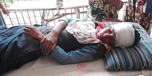 এবার কুলাউড়ায় বখাটের আঘাতে   আহত স্কুল শিক্ষার্থী